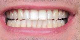 Best Aesthetic dental Kuala Lumpur