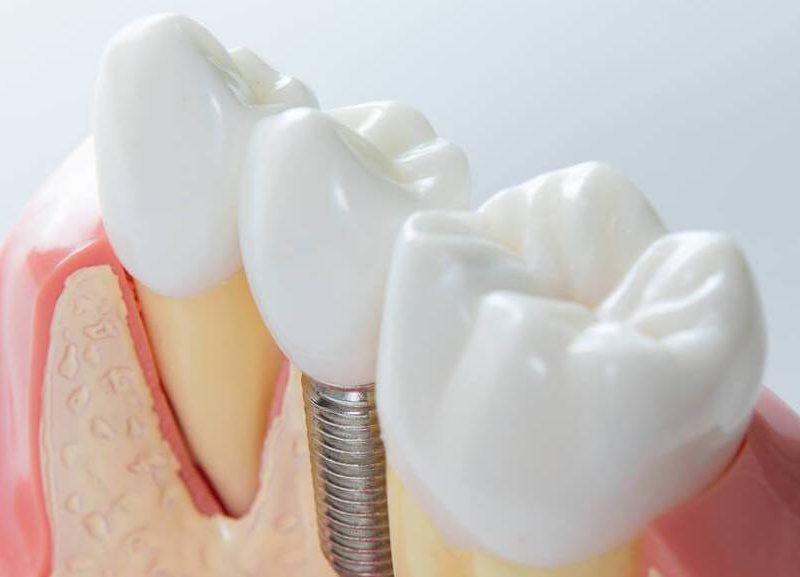 teeth-implant-bg